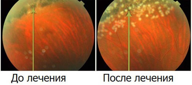 лечение дистрофии сетчатки