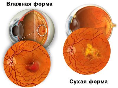 виды дистрофии сетчатки